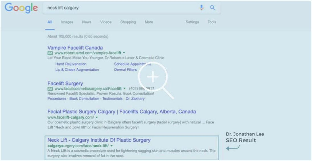 Calgary institute of cosmetic surgery in alberta ab procedures, including