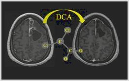 Dichloroacetate: college of alberta doctors uncover relief from cancer – collective evolution support, it